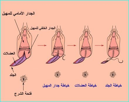 ae1b669057ccd الخياطه التجميليه - الصفحة 2 - عالم حواء