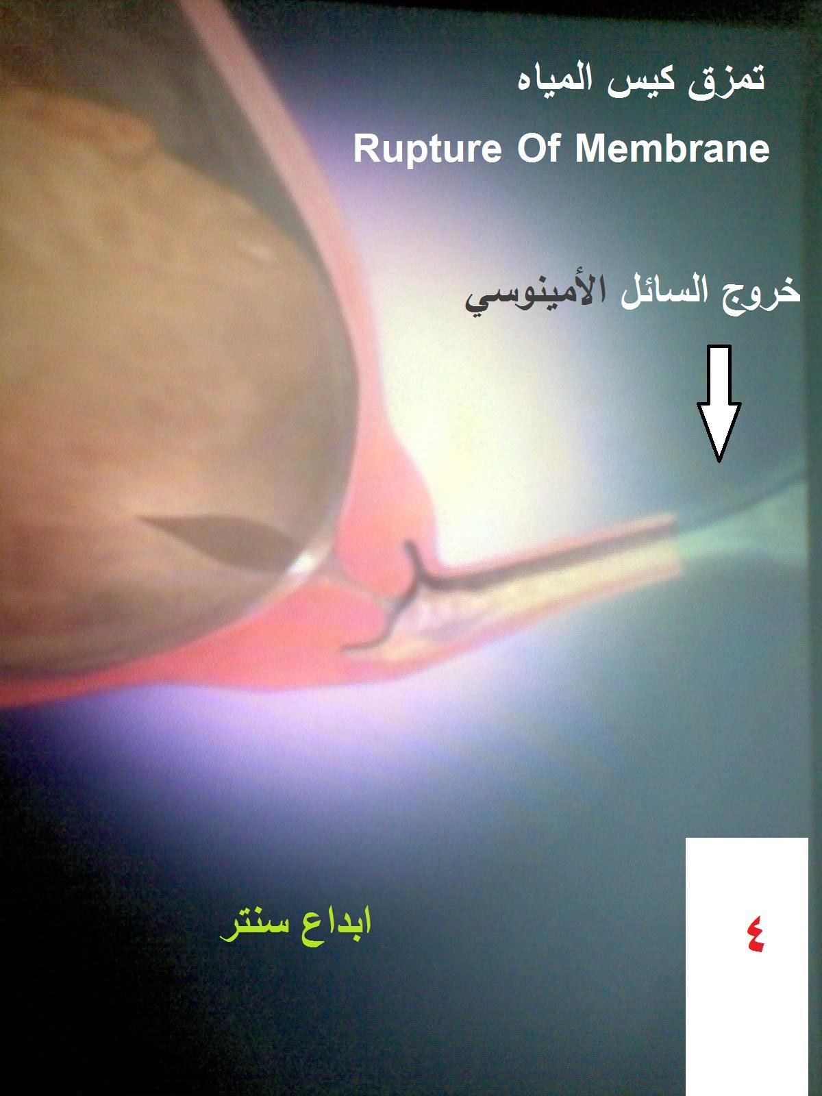 فدان خدش النعناع سدادة الرحم المخاطية بدون دم Nemoshideaway Com